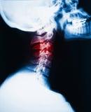 脖子痛光芒x 图库摄影