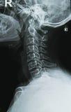 脖子X-射线图象 库存图片