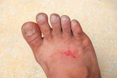 脚创伤成为与浅景深的被传染的精选的焦点 图库摄影