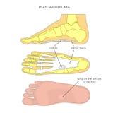 脚底fibroma 向量例证