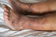 脚有varices的老妇人病人在白色背景 库存照片