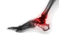 脚腕关节炎  英尺光芒x 侧向看法 倒置颜色样式 痛风或类风湿病的概念 库存照片
