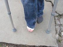脚腕拐杖扭伤了 库存照片
