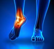 脚腕痛苦-细节 库存照片