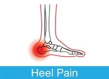 脚跟痛苦概述 库存图片