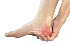 脚跟肌肉痛 图库摄影