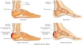 脚跟滑囊炎 库存图片