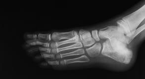 脚,倾斜看法的X-射线图象 免版税库存图片
