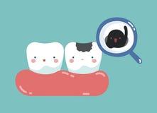腐朽的牙和细菌、牙齿概念的牙和牙 免版税库存照片