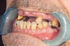 腐烂的牙、龋和匾特写镜头在一名asocially不适患者 恶劣的卫生学和健康问题的概念 免版税库存图片