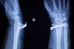 腕子伤金属植入管X-射线扫描 库存图片