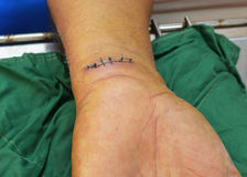 腕子被缝合的针 免版税库存照片