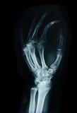腕骨人的X光芒 免版税图库摄影