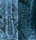 腰部光芒脊椎x 库存照片