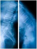 腰部医疗照片光芒脊椎x 免版税库存图片