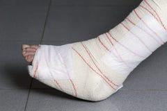 从腱的伤害 免版税库存照片