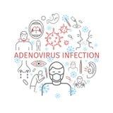 腺病毒传染 症状,治疗 线被设置的象 传染媒介标志 免版税库存照片