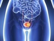 膀胱癌 免版税库存图片