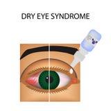 结膜炎 眼睛的赤红和炎症 船 眼药水 处理 Infographics 也corel凹道例证向量 库存例证