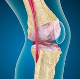 膝盖关节的骨质疏松症。 库存图片