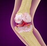 膝盖关节的骨质疏松症 库存图片