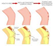 膝盖关节problem_Patellar腱炎或套头衫膝盖 进展 图库摄影