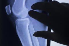 膝盖关节X-射线测试扫描 免版税库存照片