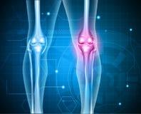膝盖痛苦摘要背景 库存例证