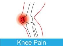 膝盖痛苦概述 库存照片