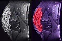 膝盖的肉瘤, MRI 免版税库存图片