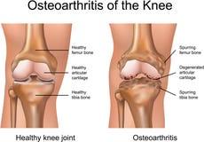 膝盖的骨关节炎 库存例证