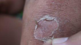 膝盖皮肤削皮 影视素材