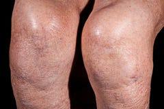 膝盖老病的妇女,身体片段 免版税图库摄影