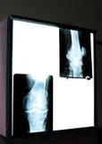 膝盖X-射线 免版税库存照片