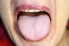 舌头在一次白色袭击 在舌头的念珠菌病 免版税库存照片