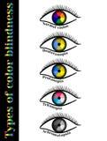 色盲的类型 图库摄影