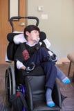 英俊的残疾八岁的两种人种的男孩微笑和relaxi 免版税图库摄影