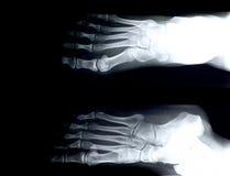英尺前面X-射线 库存照片