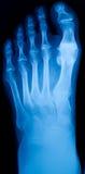 英尺的X-射线 免版税库存图片