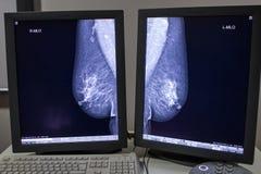 萨格勒布,克罗地亚- 2017年6月14日:在显示fr的乳房X线照片结果 库存图片