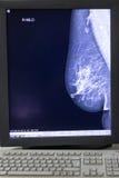 萨格勒布,克罗地亚- 2017年6月14日:在显示fr的乳房X线照片结果 免版税库存图片
