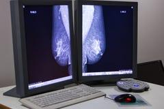 萨格勒布,克罗地亚- 2017年6月14日:在显示fr的乳房X线照片结果 免版税库存照片
