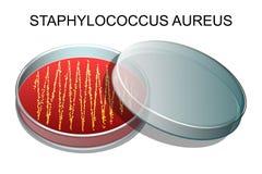 葡萄状球菌-奥里斯 v传染媒介 免版税库存照片
