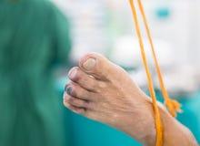 蓝色脚趾综合症状 库存照片