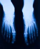 脚X-射线 图库摄影