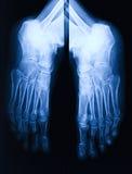 脚X-射线 库存照片