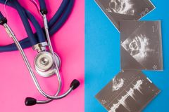 虚构超声波测试或考试和医疗听诊器在两种颜色背景中:蓝色和桃红色 ultrasoun的概念 免版税库存图片