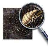 虱子问题 库存照片