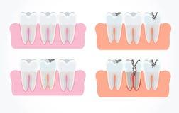 蛀牙阶段与龋的 牙科和口头关心 库存照片