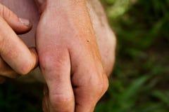 蜜蜂的螯在手边 免版税库存图片